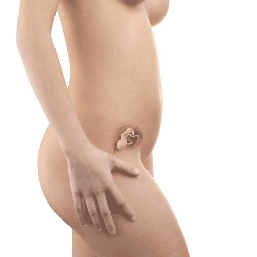 10 week fetus